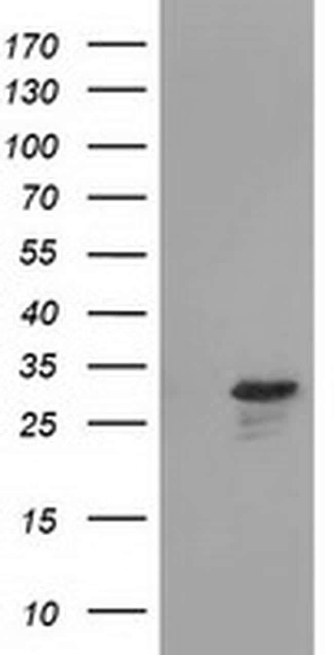 RASD2 Antibody in Western Blot (WB)