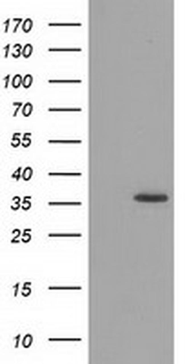 GRHPR Antibody in Western Blot (WB)