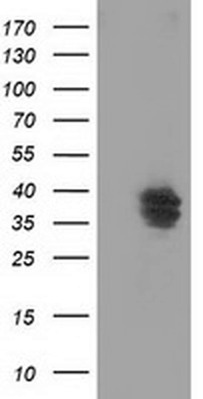 VSIG2 Antibody in Western Blot (WB)