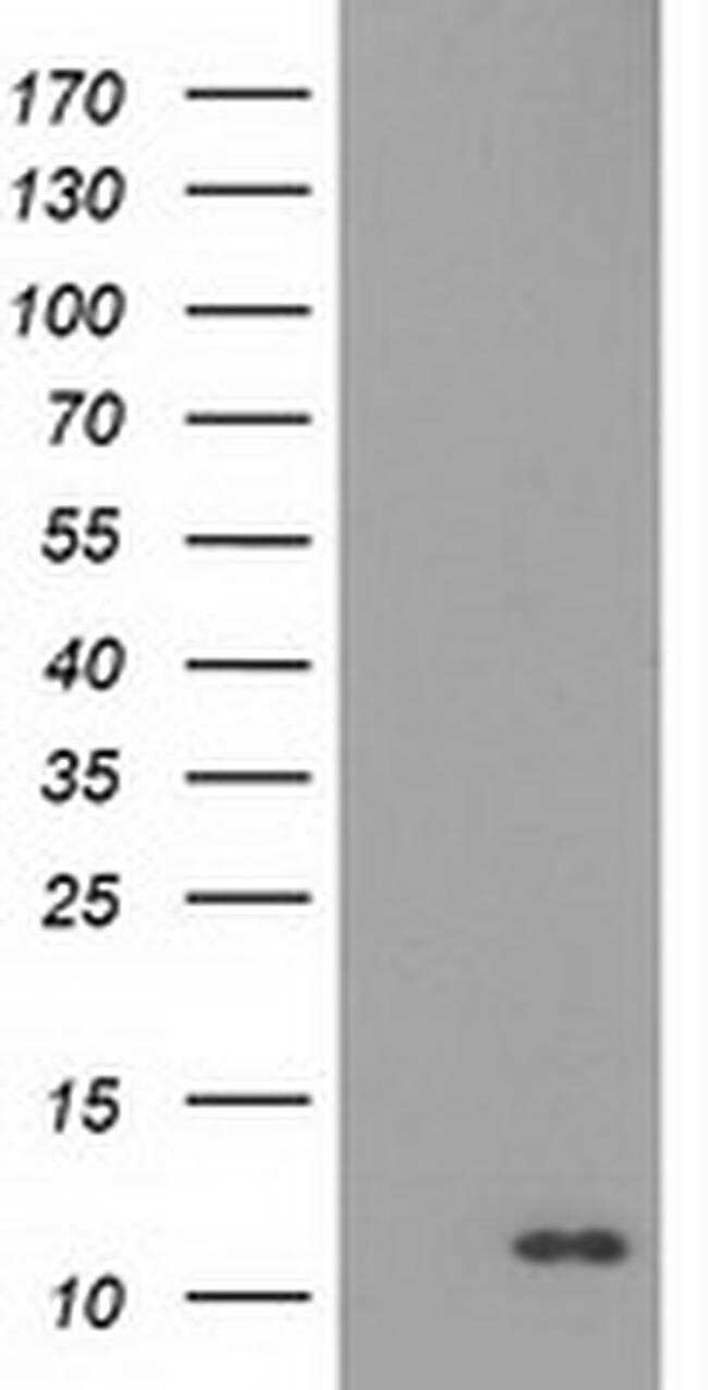 S100A12 Antibody in Western Blot (WB)