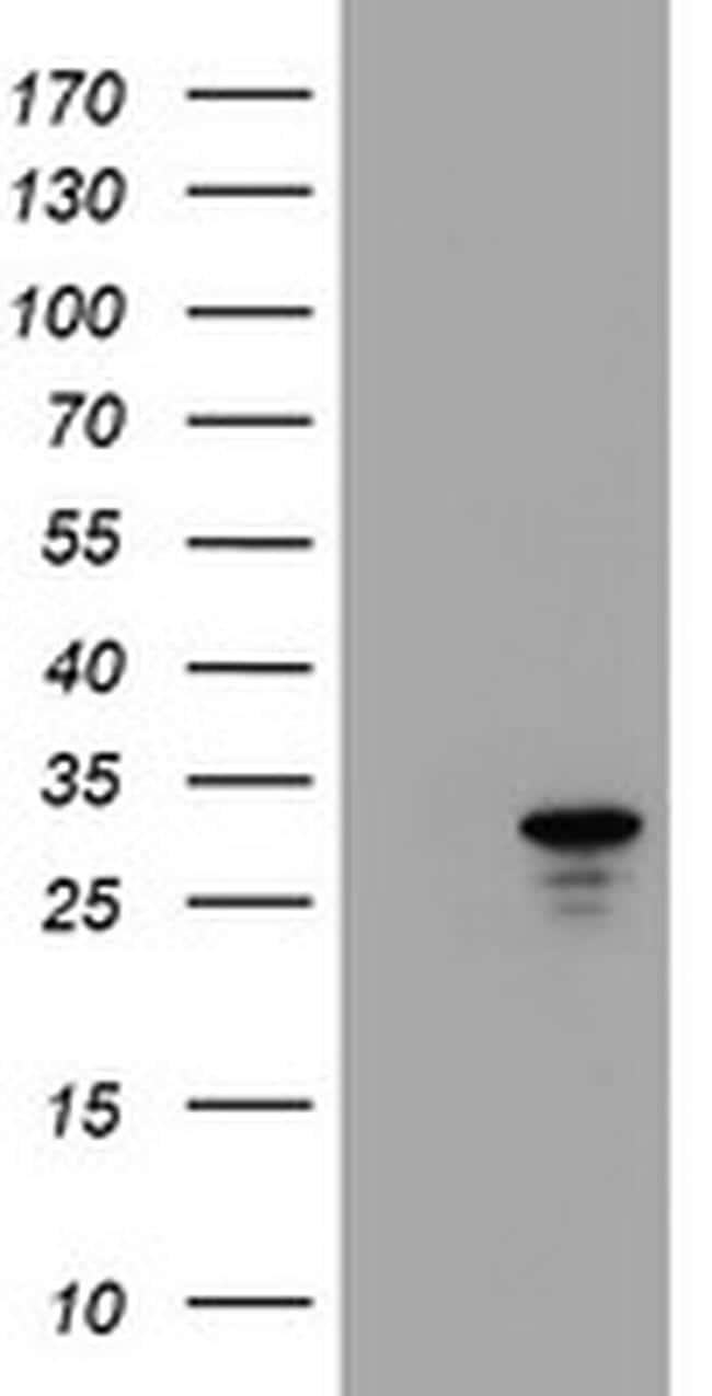 HDHD1 Antibody in Western Blot (WB)