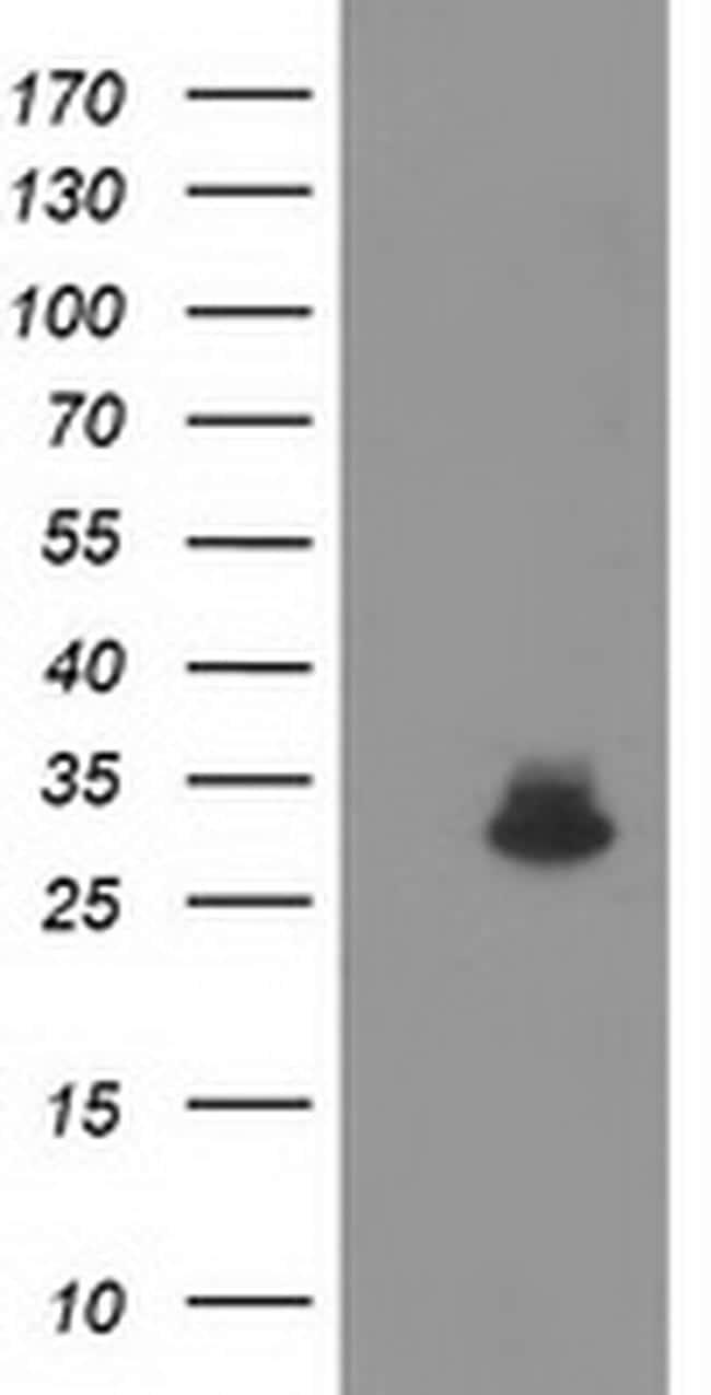 KCTD14 Antibody in Western Blot (WB)