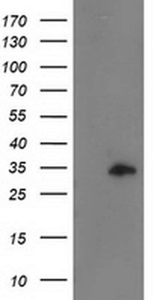 CCNB1IP1 Antibody in Western Blot (WB)