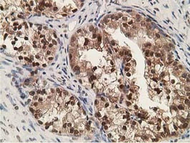 Alcohol Dehydrogenase 1B Antibody in Immunohistochemistry (Paraffin) (IHC (P))