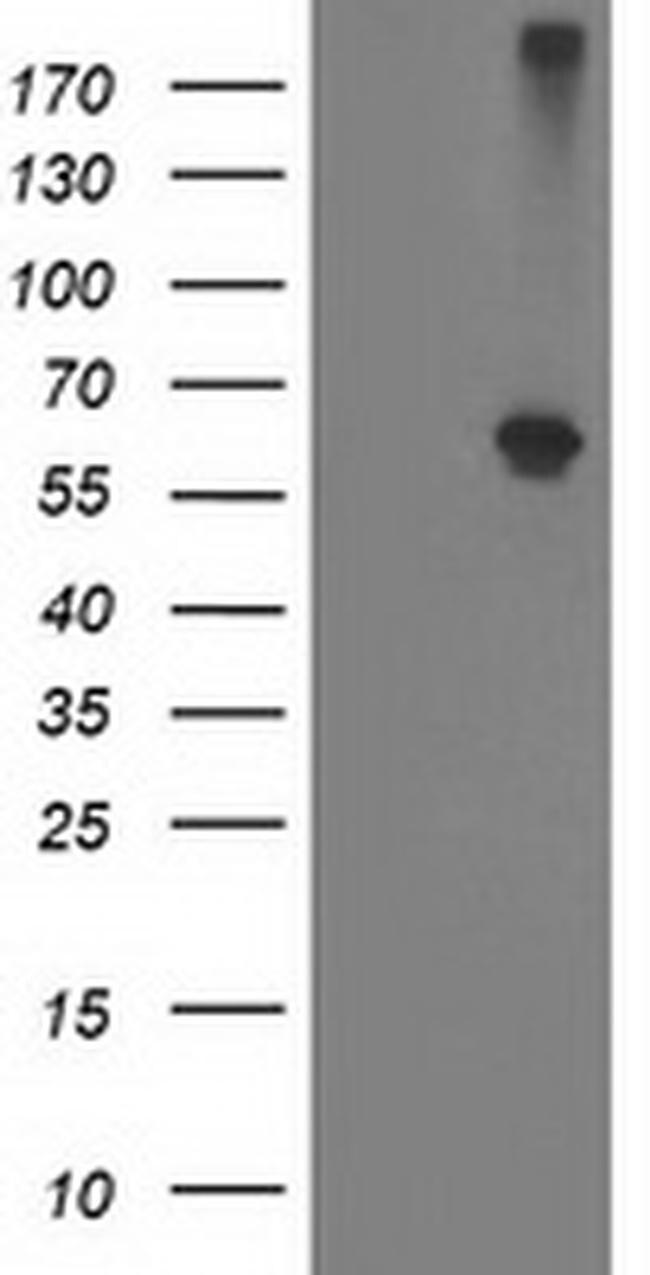 Alcohol Dehydrogenase 1B Antibody in Western Blot (WB)