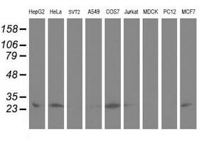 Adenylate Kinase 4 Antibody in Western Blot (WB)