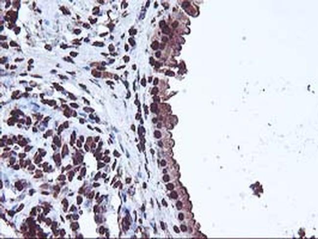 OSGEP Antibody in Immunohistochemistry (Paraffin) (IHC (P))