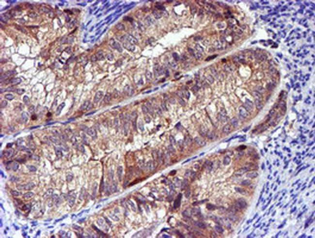 LIMK1 Antibody in Immunohistochemistry (Paraffin) (IHC (P))
