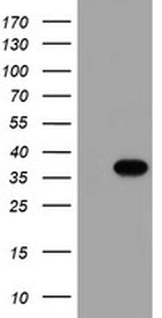 Monoacylglycerol Lipase Antibody in Western Blot (WB)