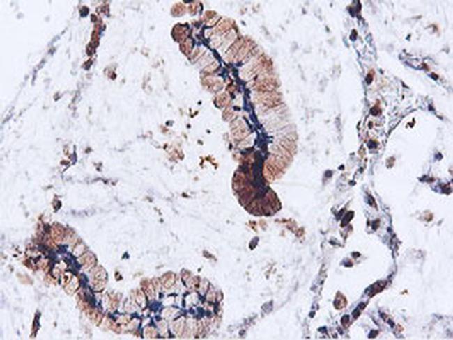 ILVBL Antibody in Immunohistochemistry (Paraffin) (IHC (P))