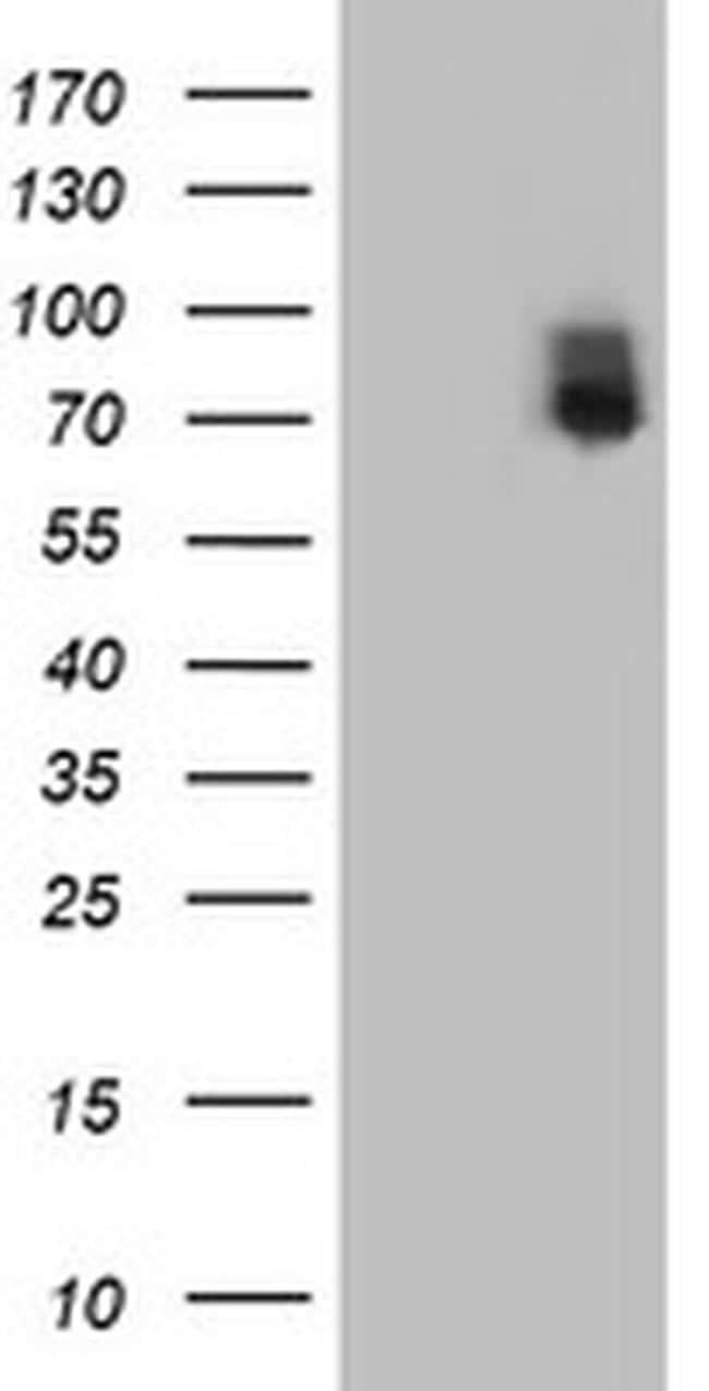 ILVBL Antibody in Western Blot (WB)