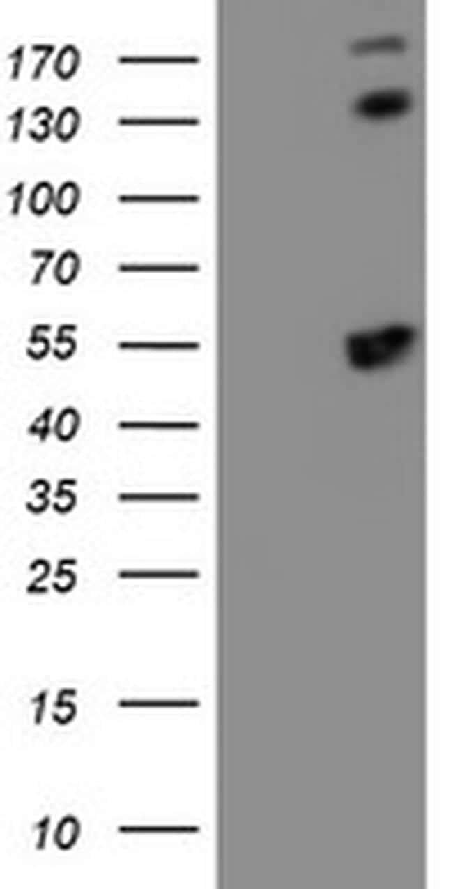 SMS Antibody in Western Blot (WB)