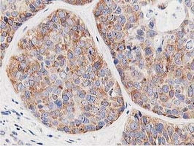 LCMT1 Antibody in Immunohistochemistry (Paraffin) (IHC (P))