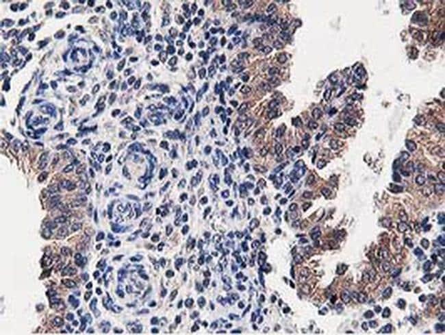 OSBP Antibody in Immunohistochemistry (Paraffin) (IHC (P))