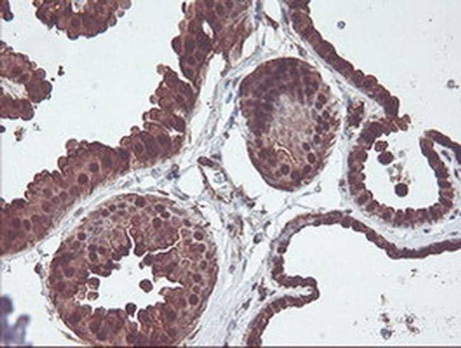 CNDP2 Antibody in Immunohistochemistry (Paraffin) (IHC (P))