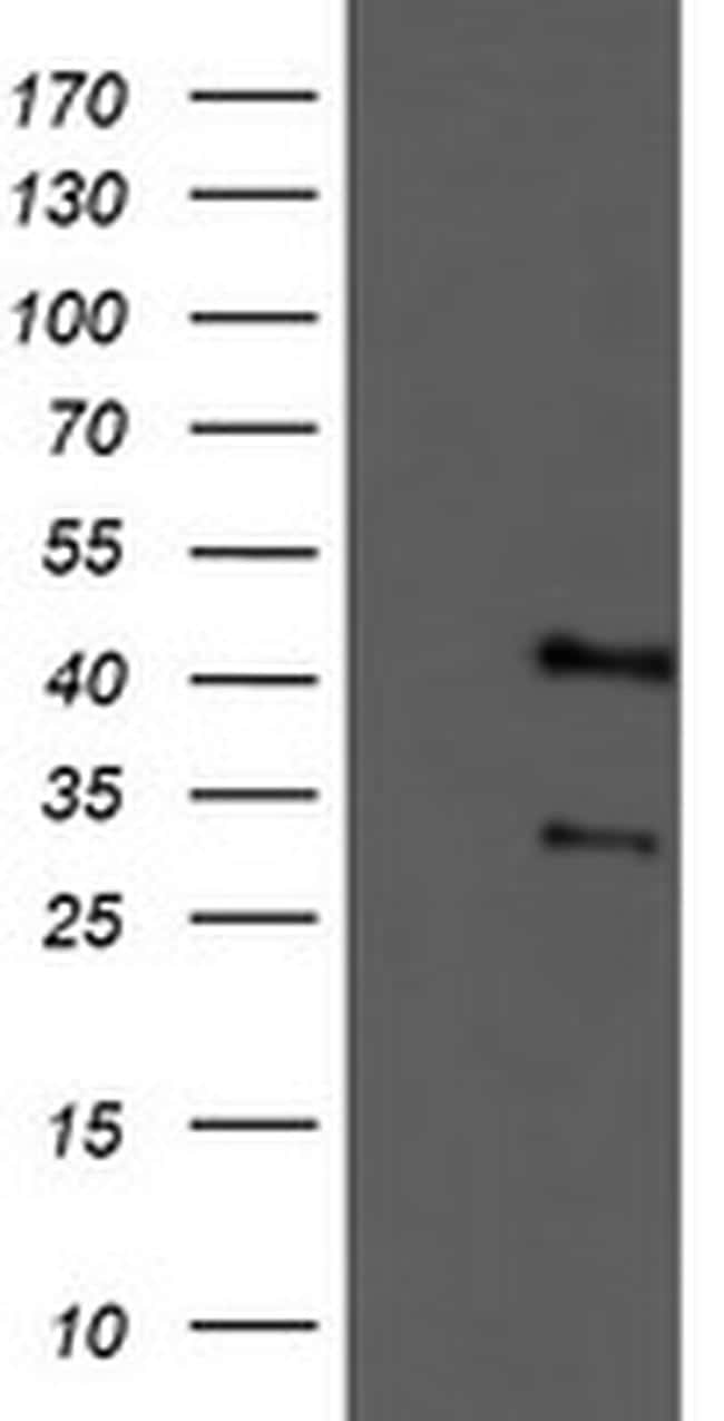 TMOD1 Antibody in Western Blot (WB)