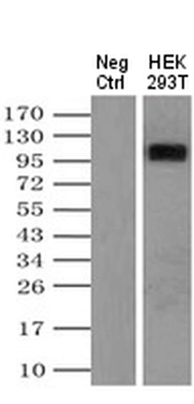 LGR5 Antibody in Immunoprecipitation (IP)