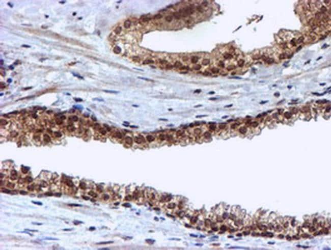 CYP17A1 Antibody in Immunohistochemistry (Paraffin) (IHC (P))