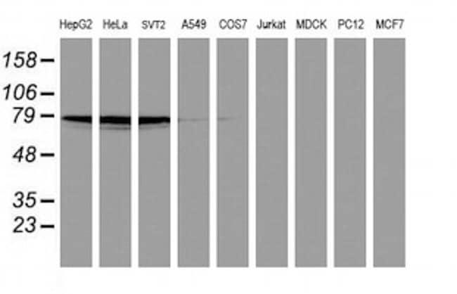 PDE4B Antibody in Western Blot (WB)