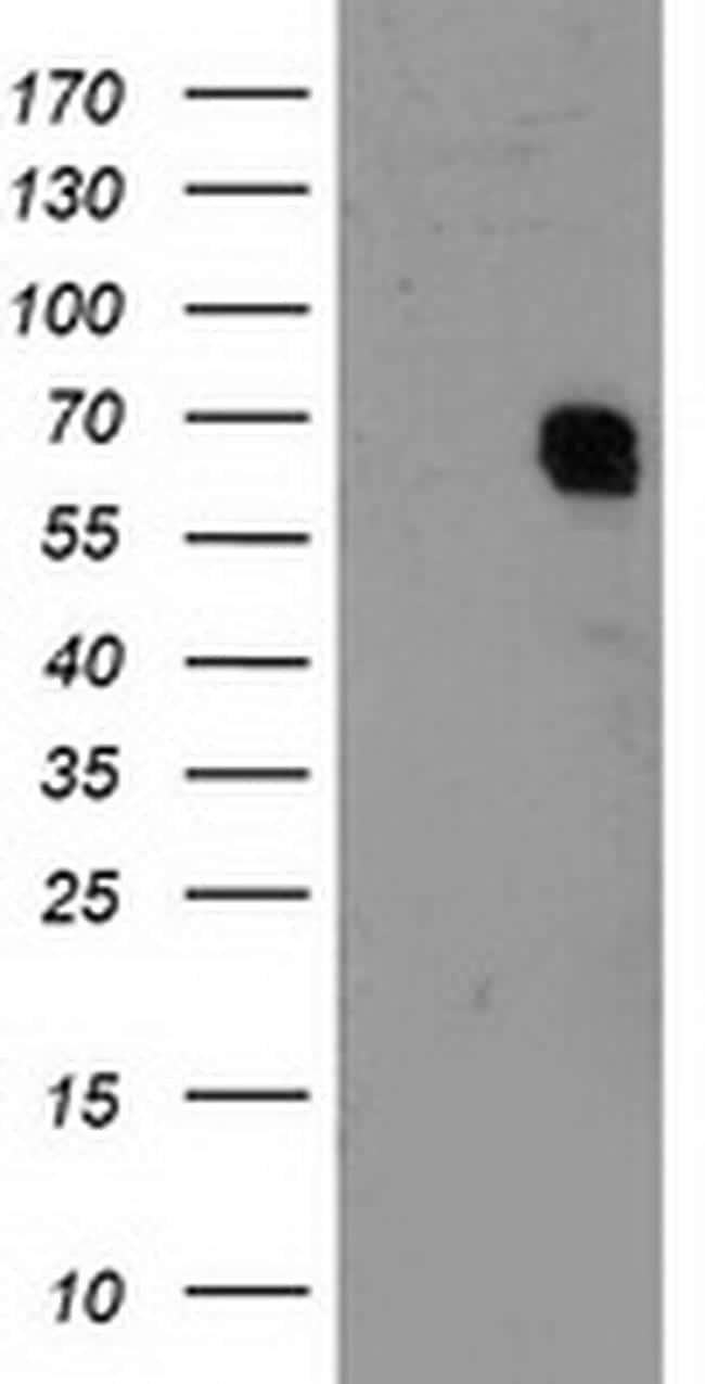 GTF2F1 Antibody in Western Blot (WB)