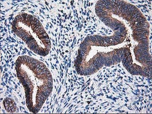 Ribophorin I Antibody in Immunohistochemistry (Paraffin) (IHC (P))
