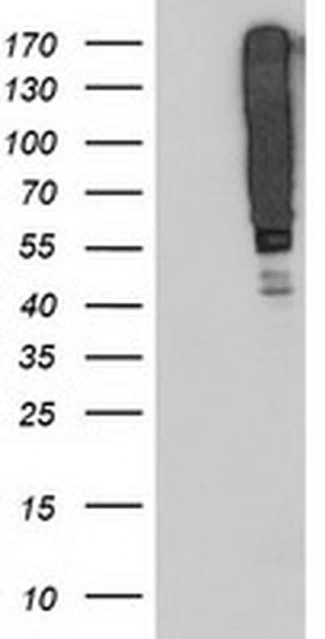SERPINB13 Antibody in Western Blot (WB)