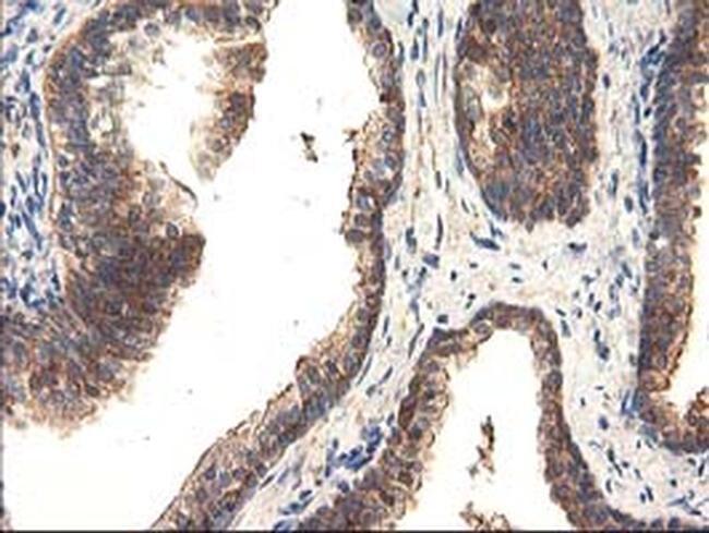 TRK fused gene Antibody in Immunohistochemistry (Paraffin) (IHC (P))