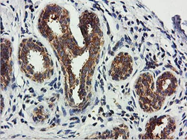 USP10 Antibody in Immunohistochemistry (Paraffin) (IHC (P))