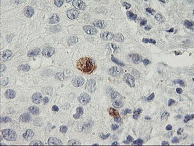 SDS Antibody in Immunohistochemistry (Paraffin) (IHC (P))
