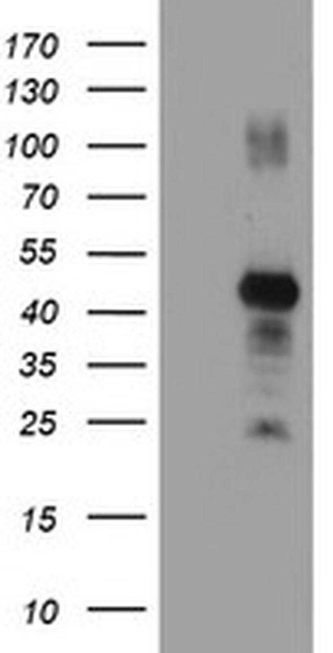 RNF113B Antibody in Western Blot (WB)