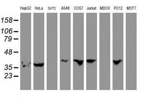 ERI1 Antibody in Western Blot (WB)