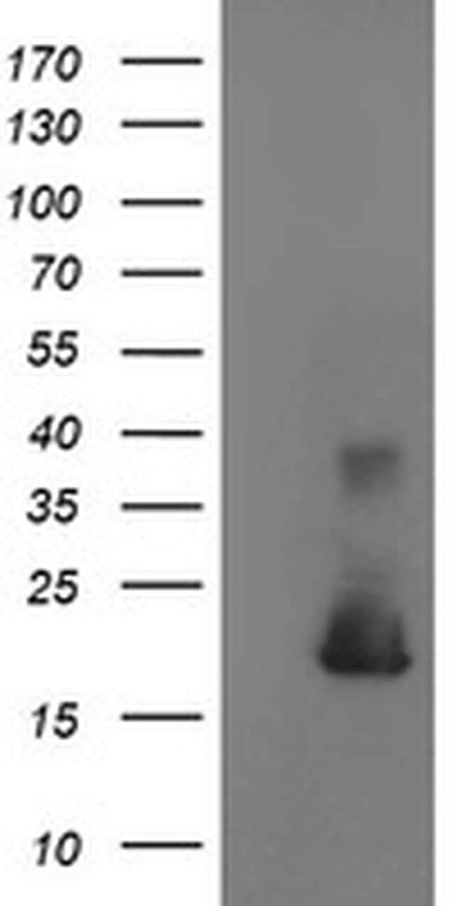 Cystatin S Antibody in Western Blot (WB)