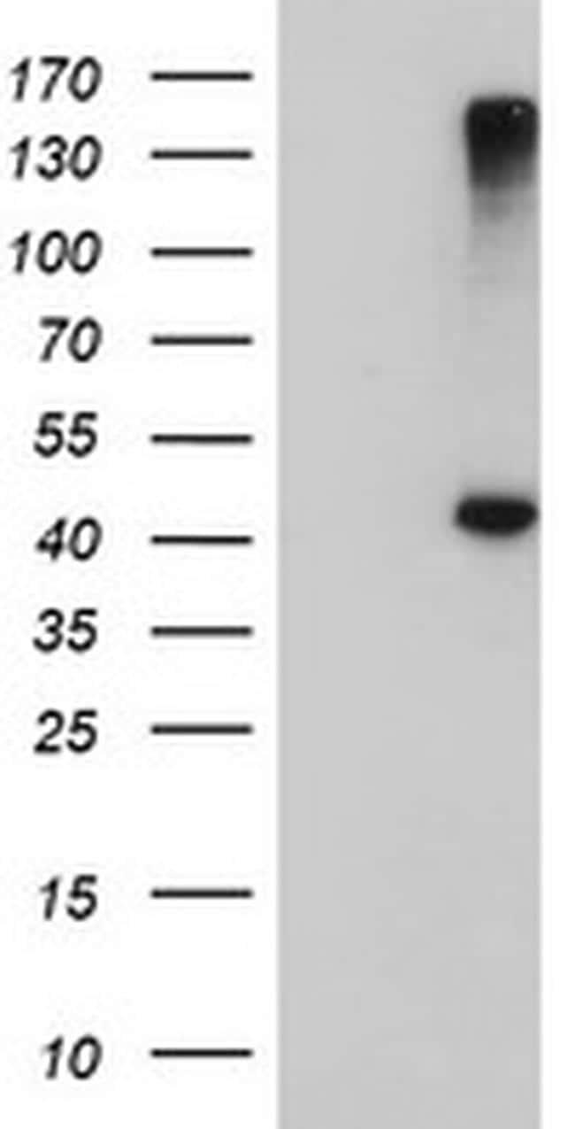 AGPAT5 Antibody in Western Blot (WB)