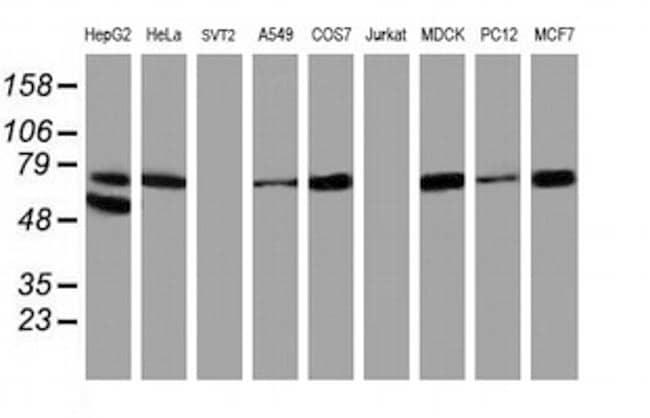 ALOX15 Antibody in Western Blot (WB)