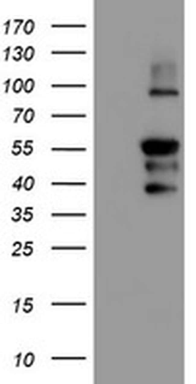 GADD34 Antibody in Western Blot (WB)