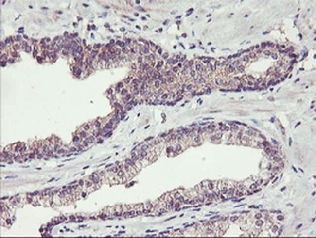 TMEFF2 Antibody in Immunohistochemistry (Paraffin) (IHC (P))