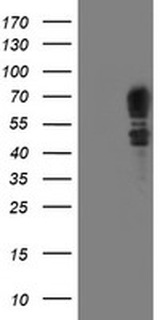 SCHIP1 Antibody in Western Blot (WB)