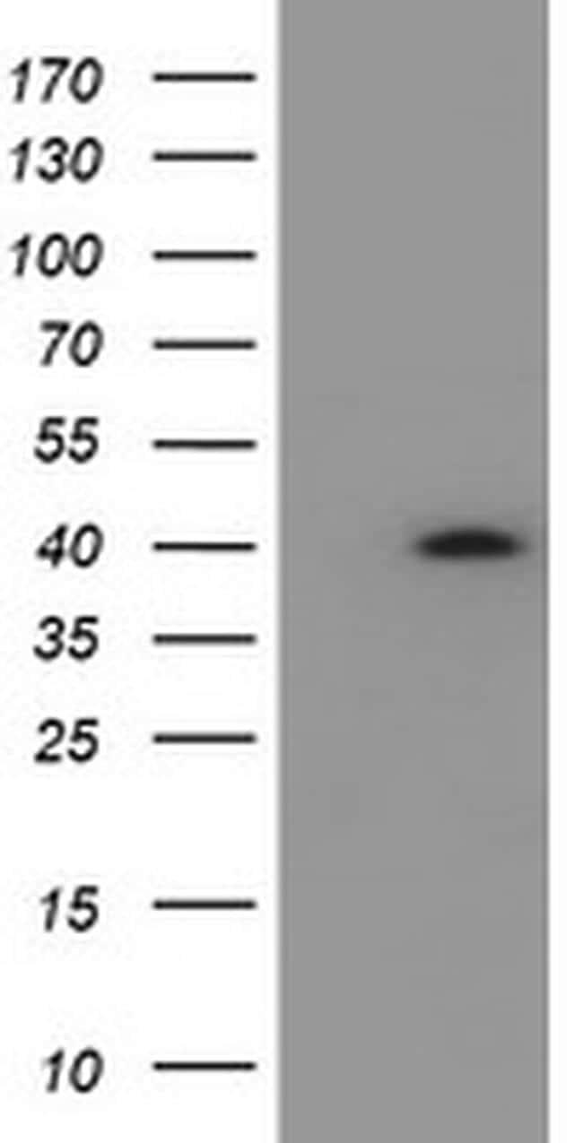 HSD17B2 Antibody in Western Blot (WB)