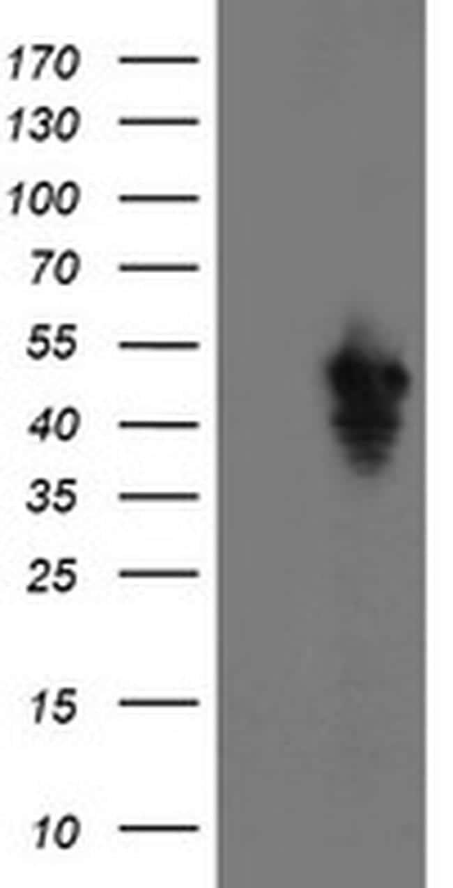 SERPINE2 Antibody in Western Blot (WB)