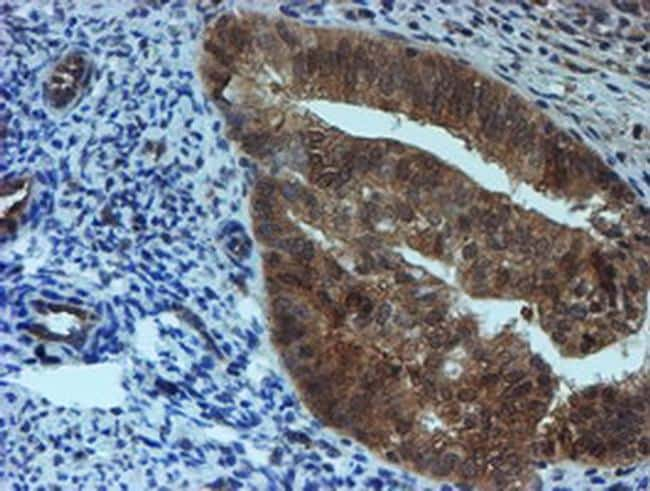 SAT2 Antibody in Immunohistochemistry (Paraffin) (IHC (P))