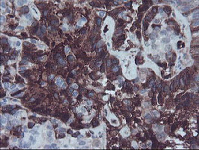 Fetuin A Antibody in Immunohistochemistry (Paraffin) (IHC (P))