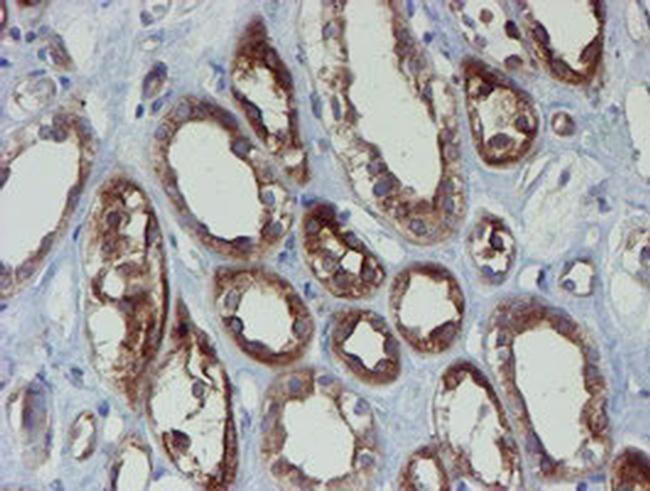 PPAT Antibody in Immunohistochemistry (Paraffin) (IHC (P))