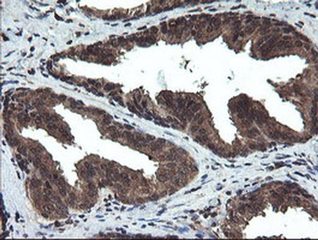 DOK7 Antibody in Immunohistochemistry (Paraffin) (IHC (P))
