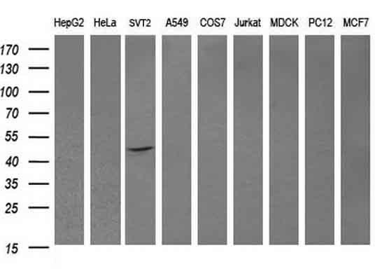 DOK7 Antibody in Western Blot (WB)