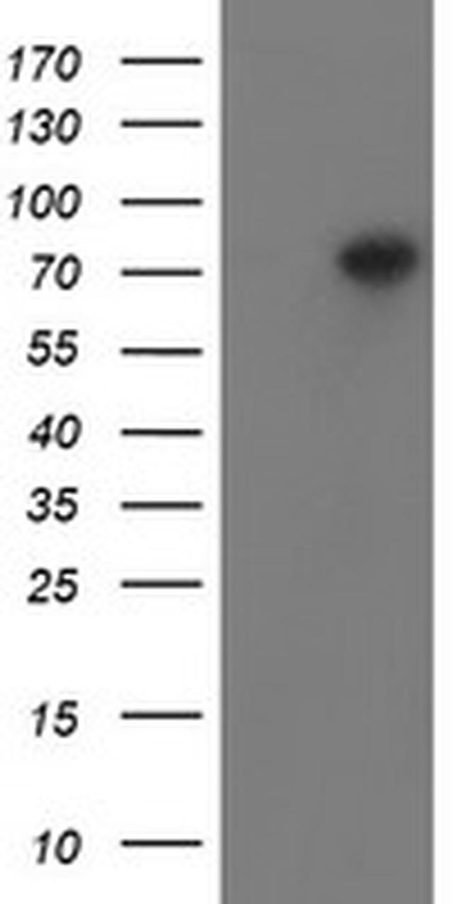 PADI4 Antibody in Western Blot (WB)