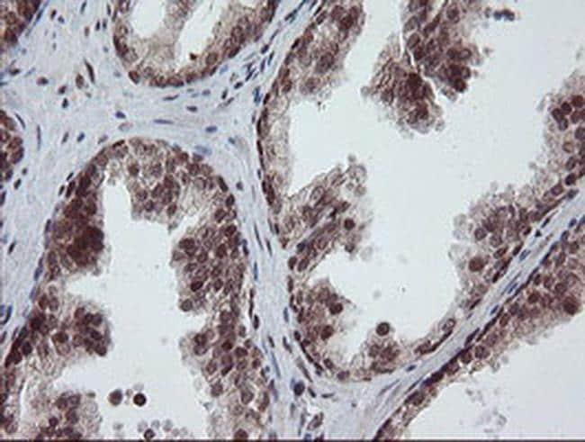 RFC2 Antibody in Immunohistochemistry (Paraffin) (IHC (P))