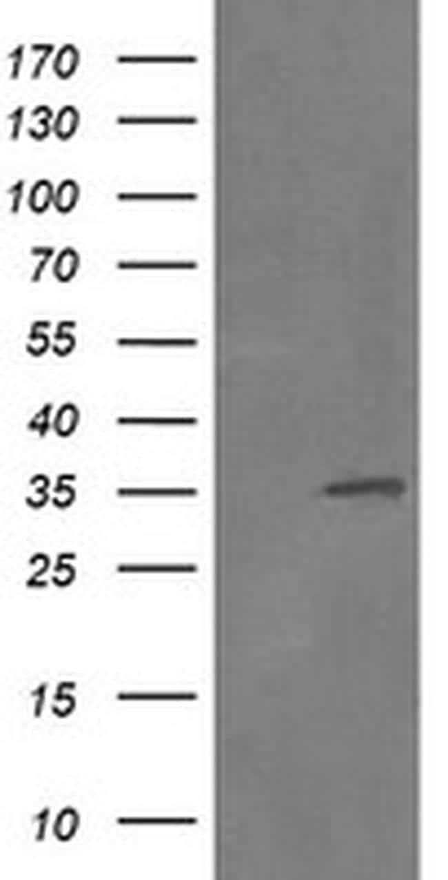 RFC2 Antibody in Western Blot (WB)