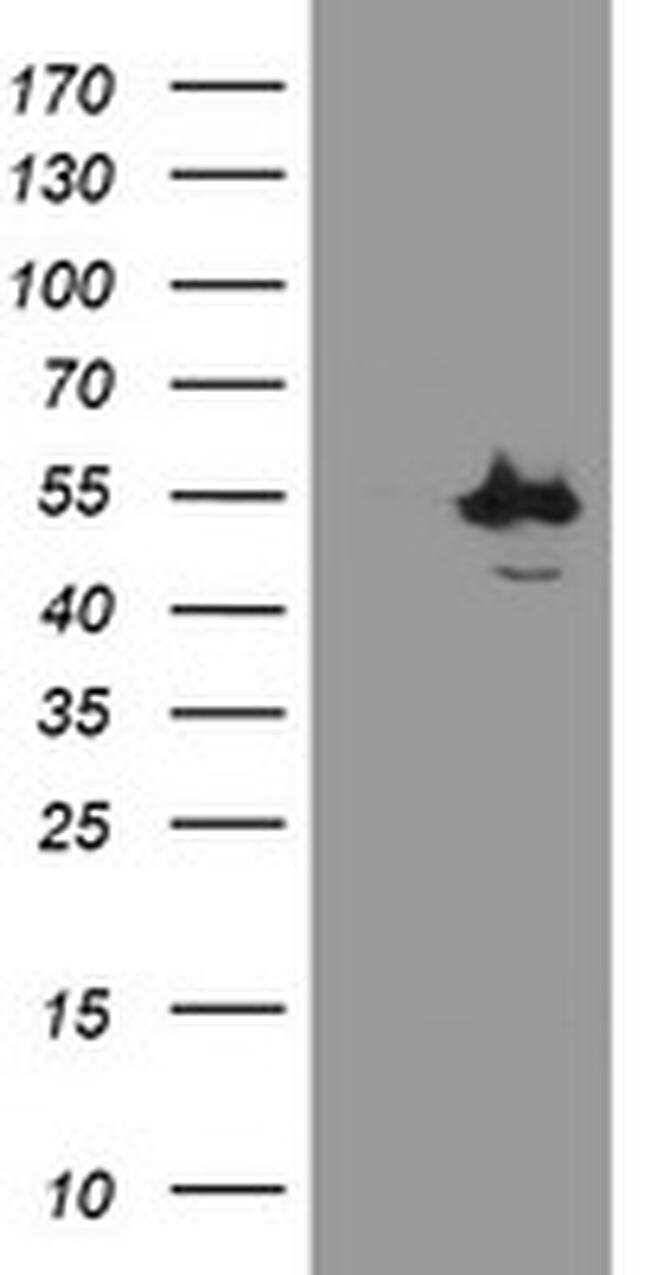 CHN1 Antibody in Western Blot (WB)