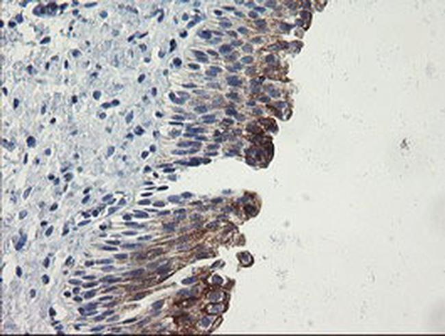 SLA2 Antibody in Immunohistochemistry (Paraffin) (IHC (P))