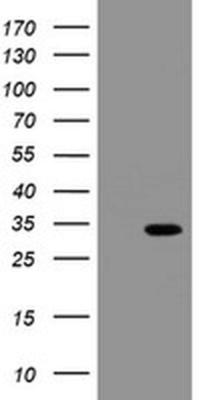 SLA2 Antibody in Western Blot (WB)
